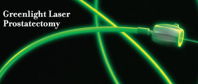 green laser prostata recensioni